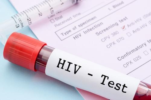 Diagnósticos de Aids na população idosa crescem sete vezes em dez anos